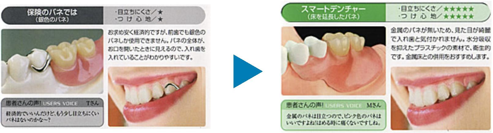 和田精密歯研究パンフレット